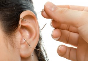 acupuncture for quitting smoking