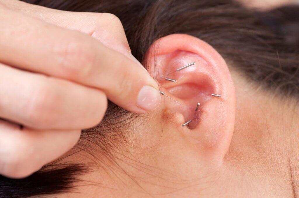 похудение с помощью иголок в уши