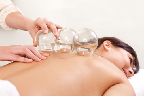 Cupping and Acupuncture